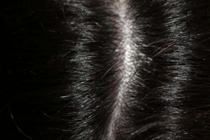 نصائح للقضاء على القشرة شعر
